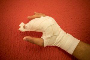 El fotògraf de la 'Directa' Victor Serri té un dit trencat i contusions a les costelles i a la cama després de ser agredit per la brigada d'antiavalots dels Mossos d'Esquadra. Foto: cedida.
